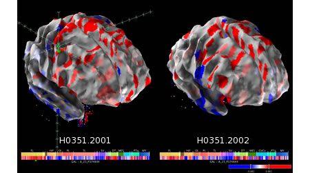 Científicos revelan el primer mapa computarizado del cerebro humano