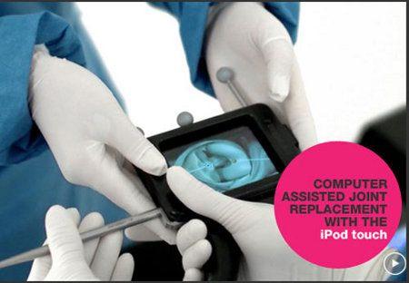 El iPod Touch es utilizado por cirujanos para realizar una cirugía de rodilla