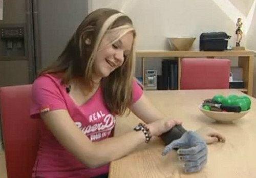Esta chica de 15 años ya cuenta con su prótesis biónica