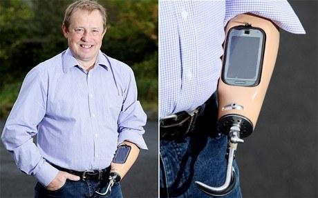 Este hombre tiene un teléfono en su brazo