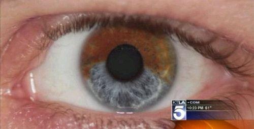 Nuevo procedimiento láser transforma ojos marrones en ojos azules