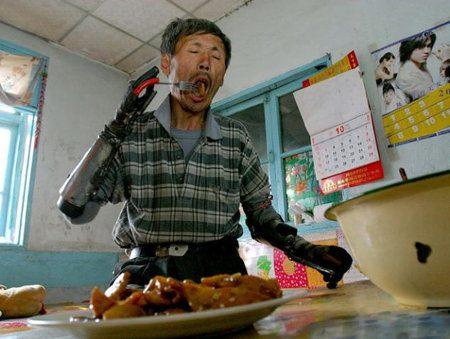 Hombre creó sus propias prótesis para brazos
