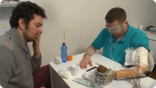Nueva prótesis de brazo permite que un hombre recupere el tacto