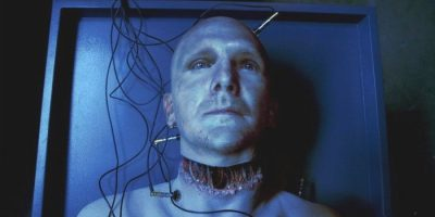 transplante de cabeza enter cadaveres